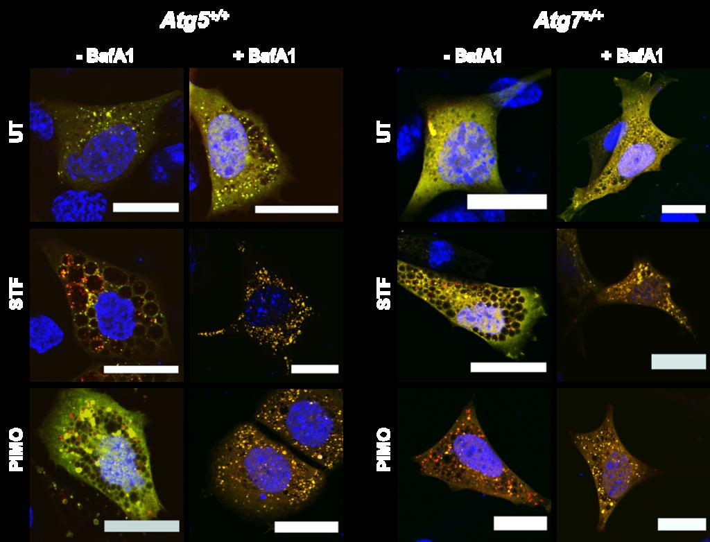 Autophagy mouse embryonic fibroblasts